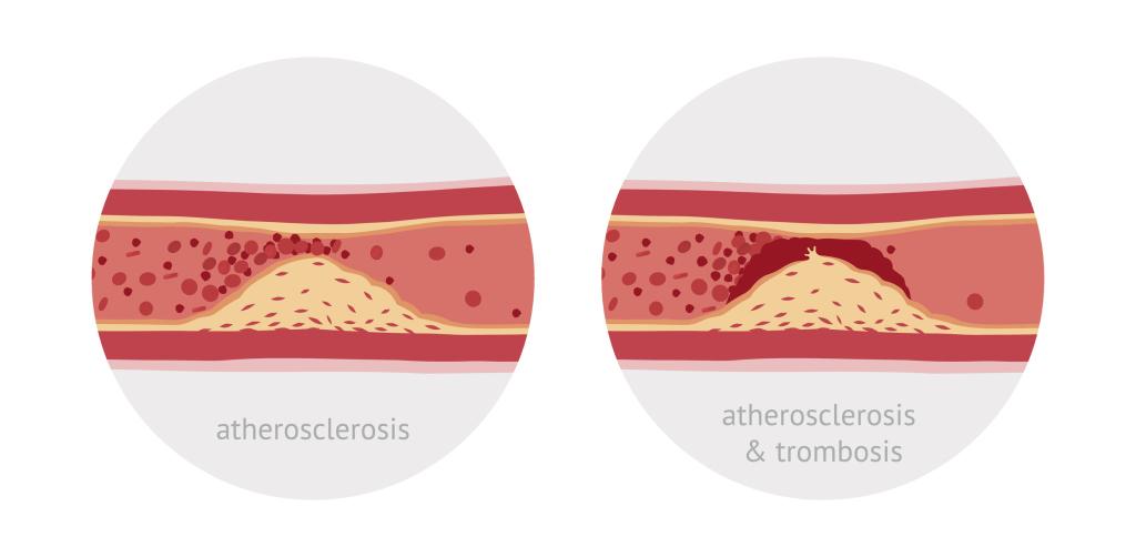 Grafik Arteriosklerose und Thrombose