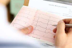 Mess-Ergebnisse einer Herzuntersuchung