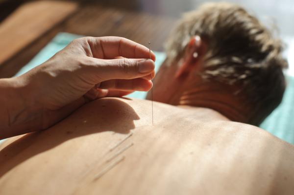 Akupunkturbehandlung Rücken